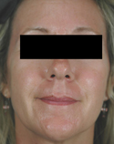 rosacea-laser-treatment-after