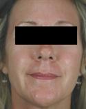 rosacea-laser-treatment-after