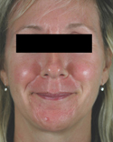 rosacea-laser-treatment-before