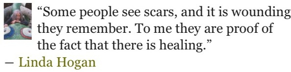 quotes on scars by linda hogan