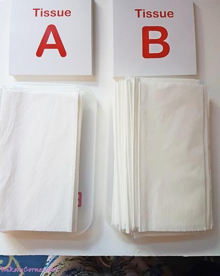 Watsons Tissue Switch Test