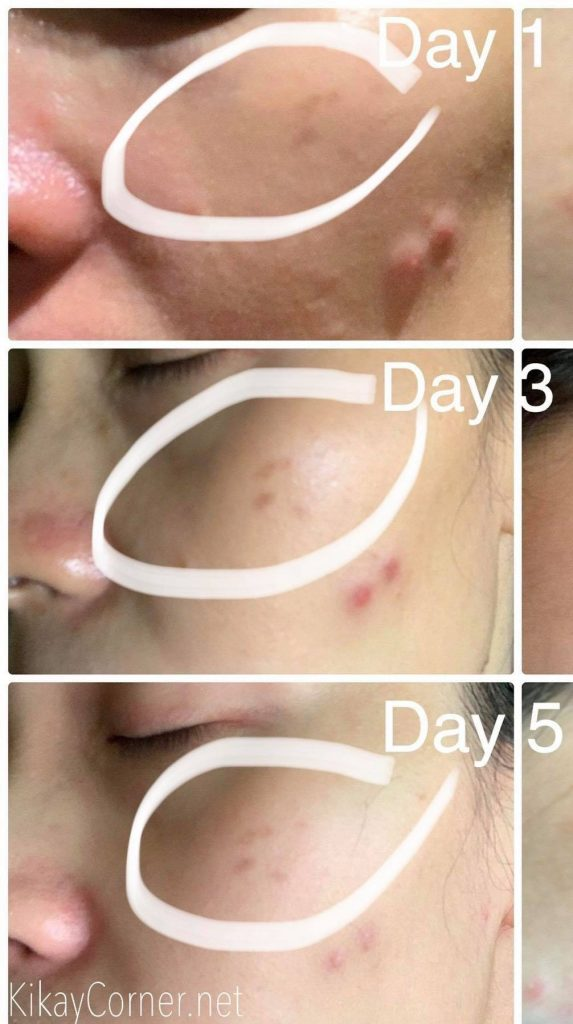latisha serum on sun spots