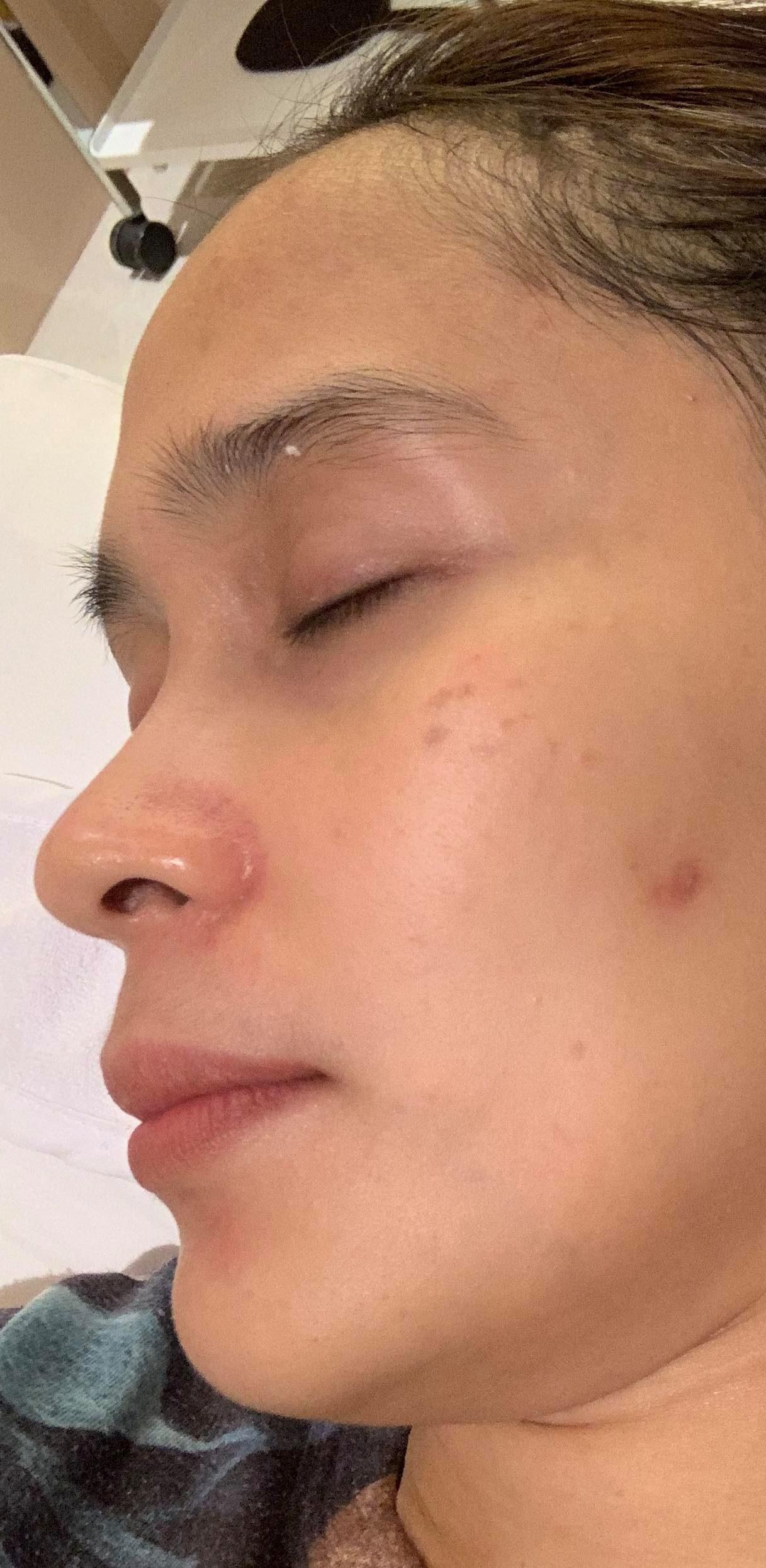 Stelton Dermascience treatment after