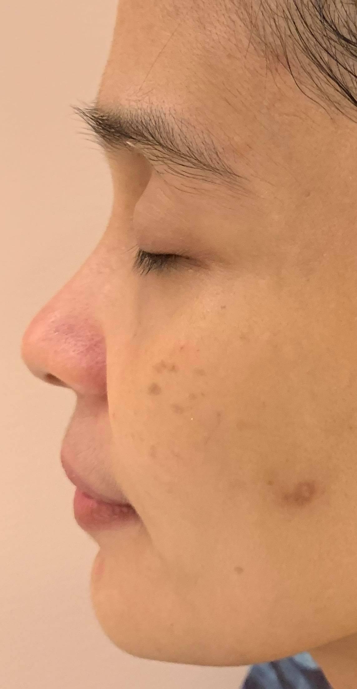 Stelton Dermascience treatment before