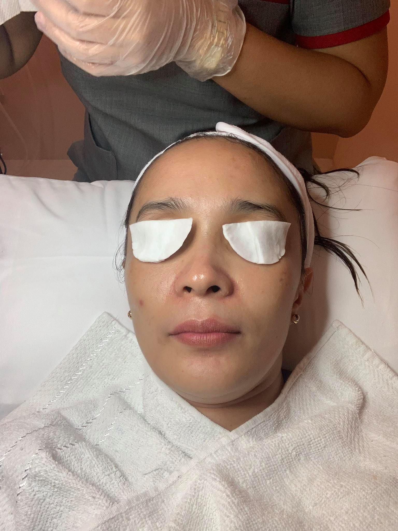 Stelton Dermoscience facial